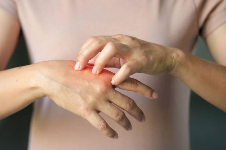 Eccema: síntomas, causas y tratamiento